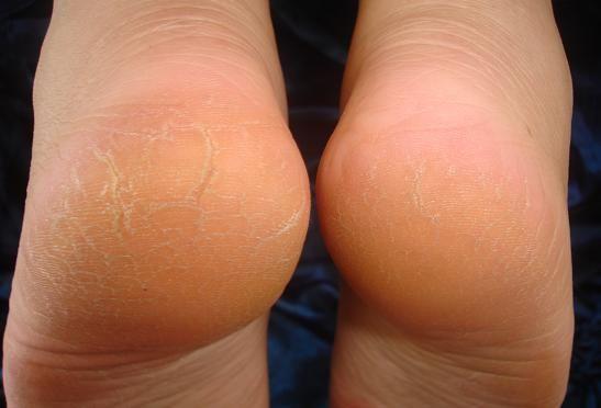 articulație crăpată și dureroasă