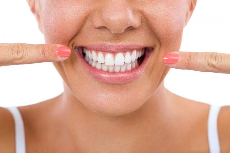 Uită de dentist! Acum poți scăpa de tartru, folosind doar 2 ingrediente –  VIVANATURA